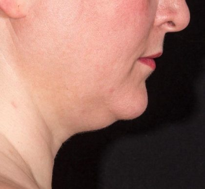 Warmsculpting Before & After Patient #252