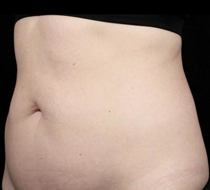 Warmsculpting Before & After Patient #255